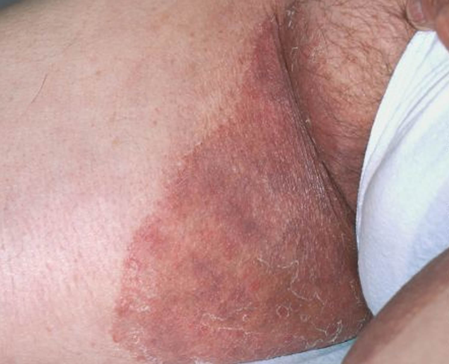 Ring rash around anus-2772