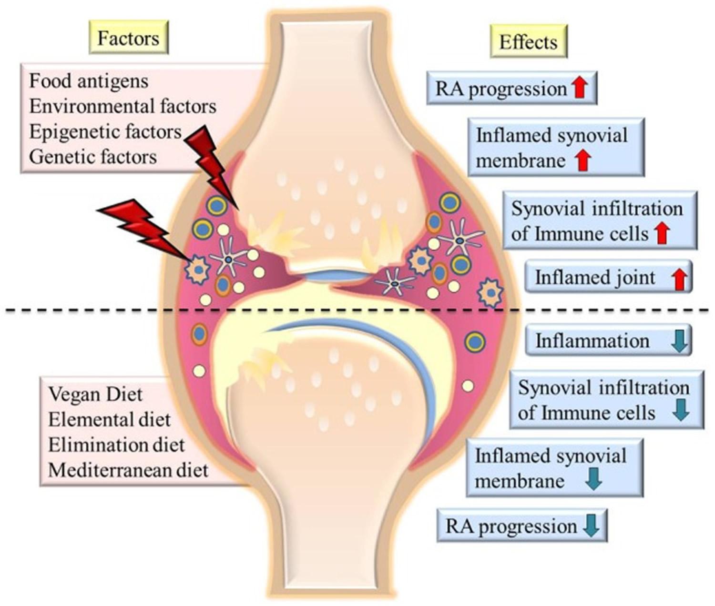 Factors contributing to severity of rheumatoid arthritis