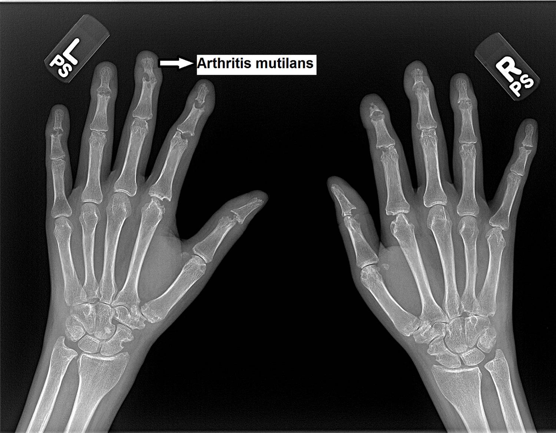 Psoriatic Arthritis Mutilans