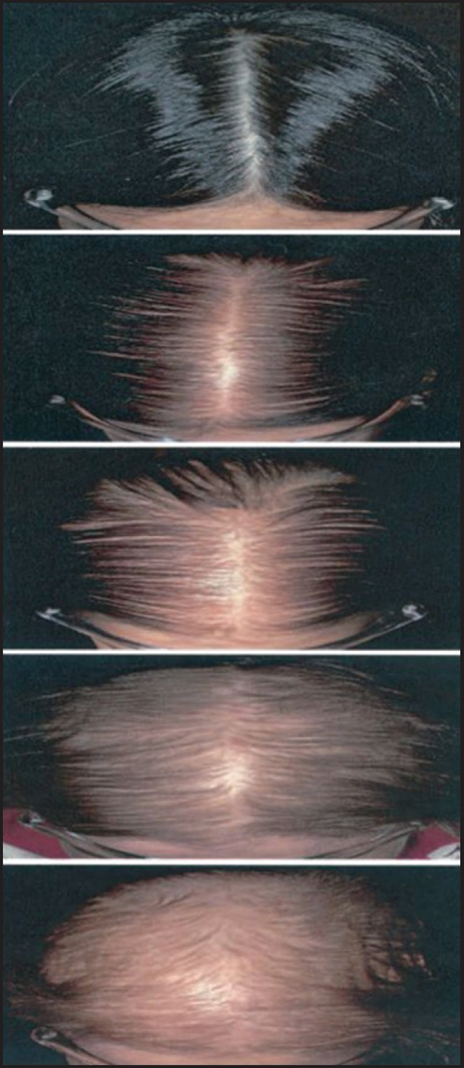 Sinclair self-reporting photographic measure of female pattern of hair loss