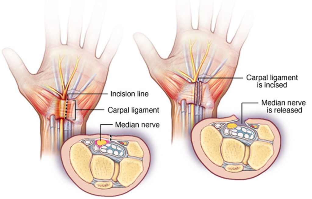 carpal tunnel symptoms - 1024×653