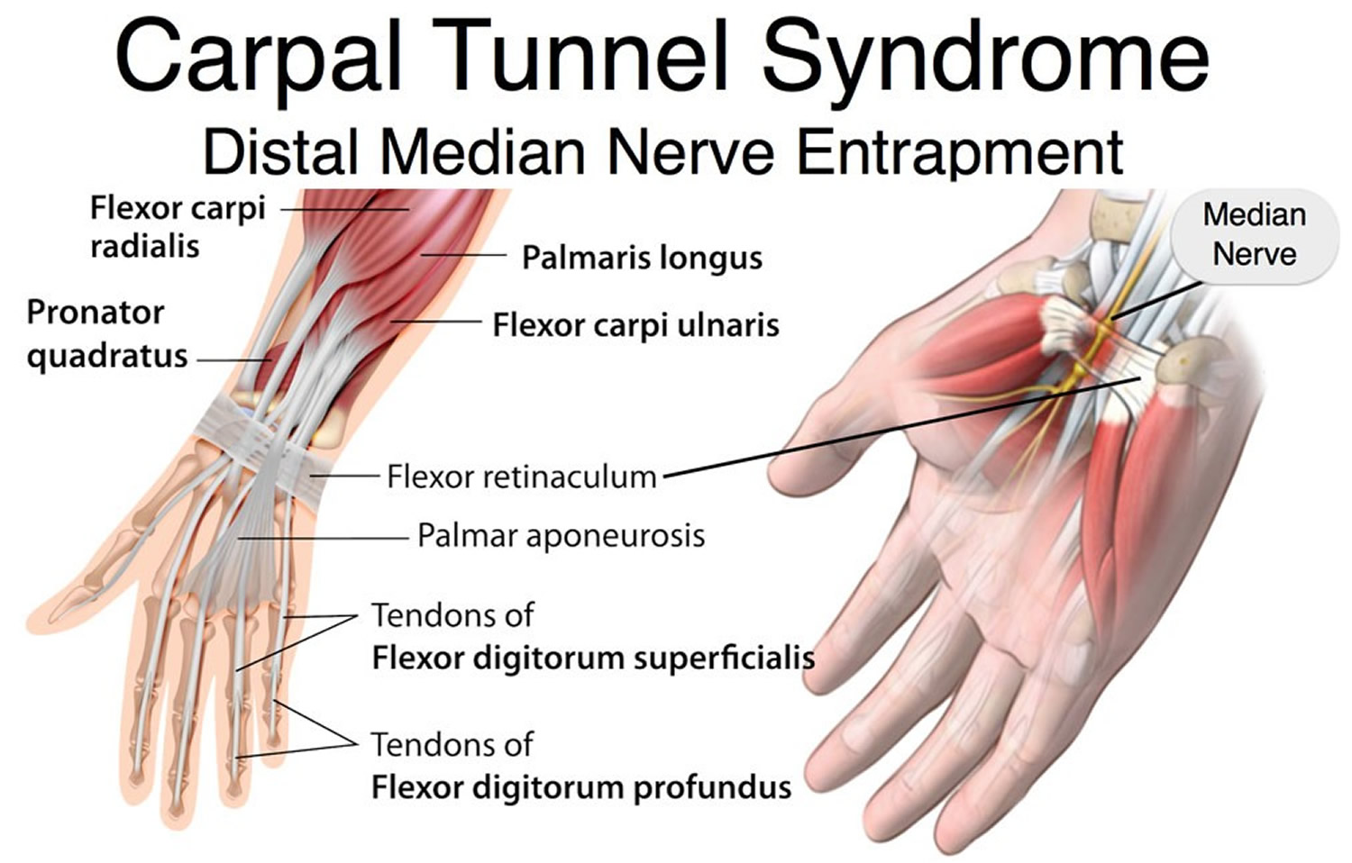 Carpal Tunnel Syndrome - Causes, Treatment, Splint & Surgery