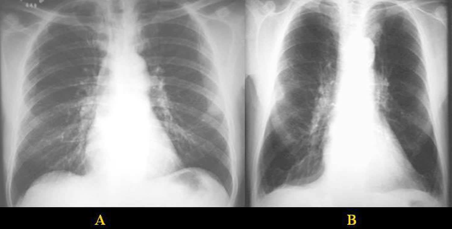 chest radiograph - normal and emphysema