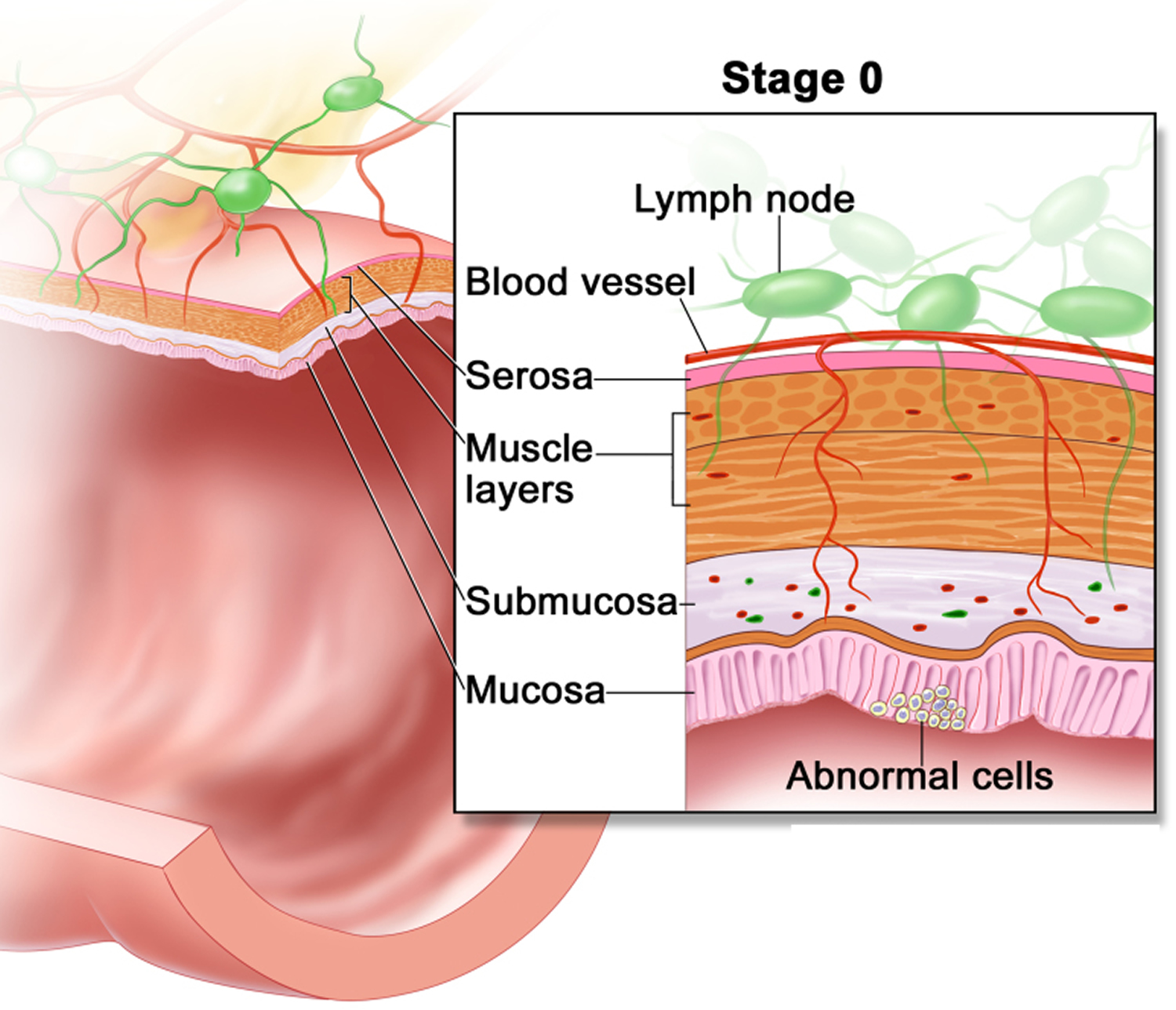 colon cancer -stage 0 Carcinoma in Situ