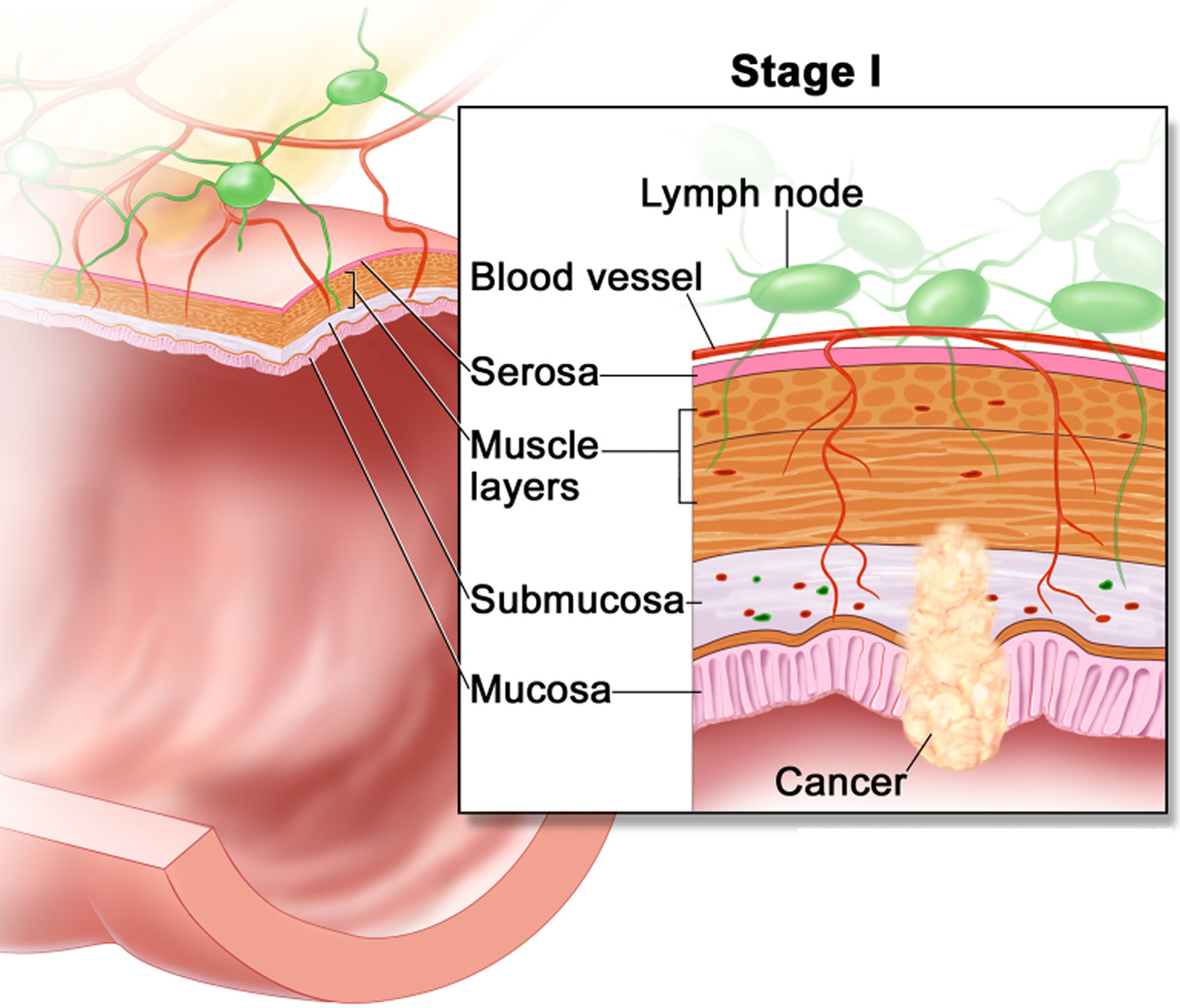 colon cancer - stage 1