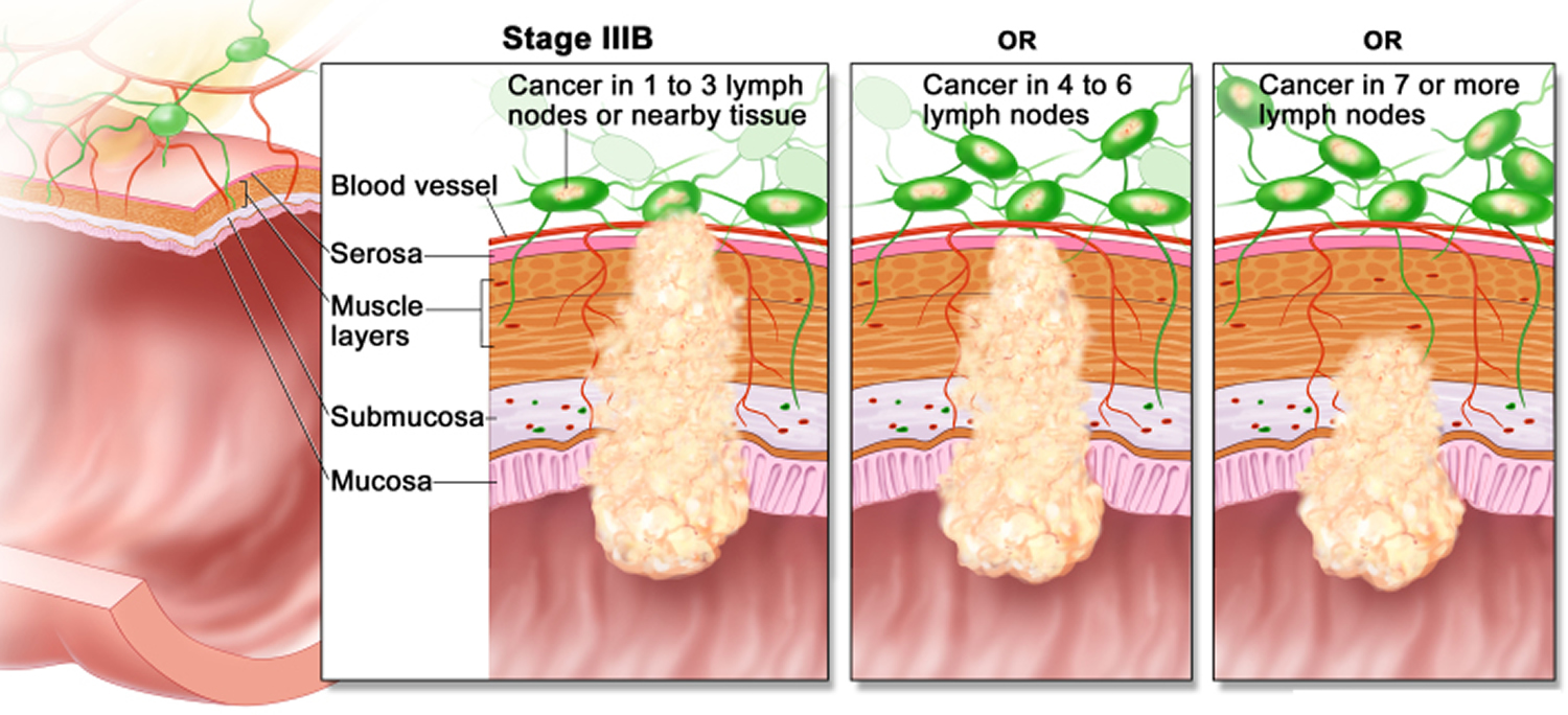 colon cancer - stage 3B
