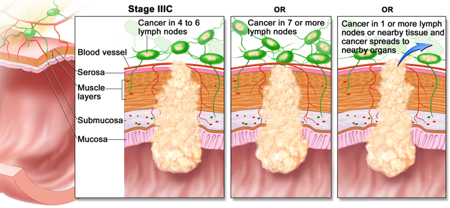 colon cancer - stage 3C