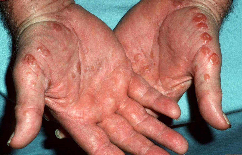 dyshidrotic eczema hand