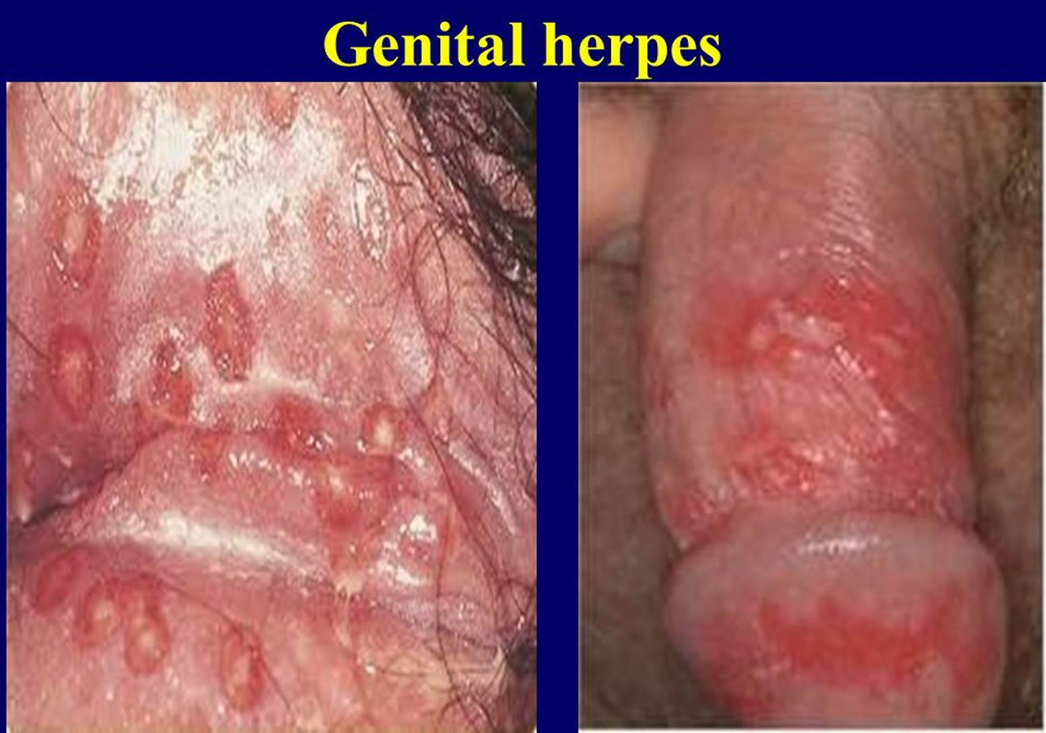 Can you get herpes without having sex