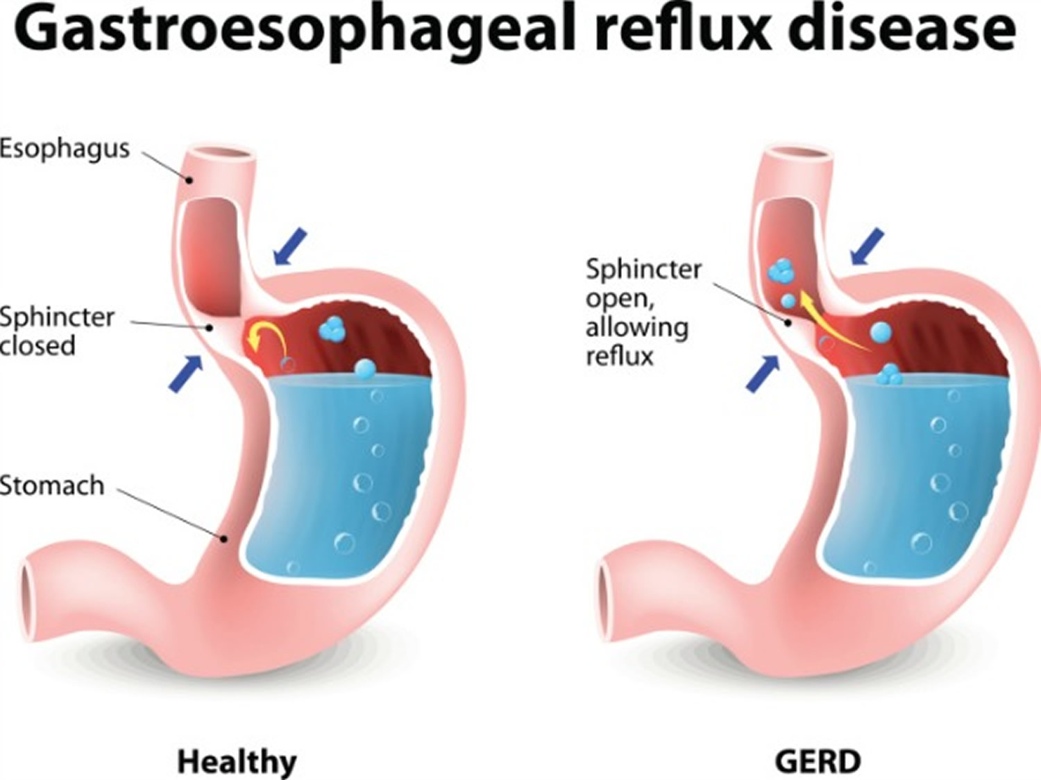 Gerd And Heartburn