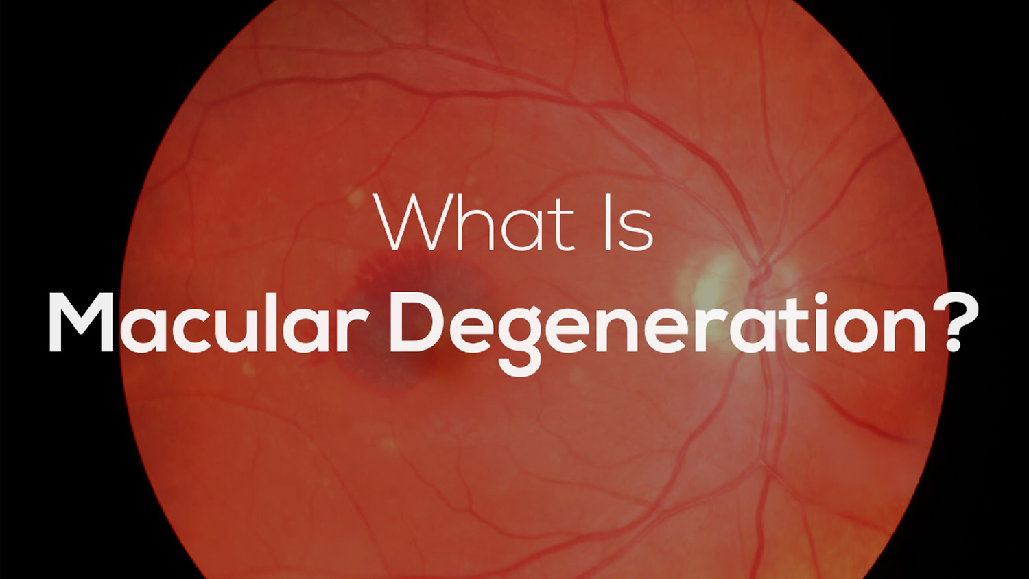 Macular Degeneration Age Related Causes Types