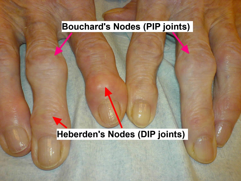 osteoarthritis-hands