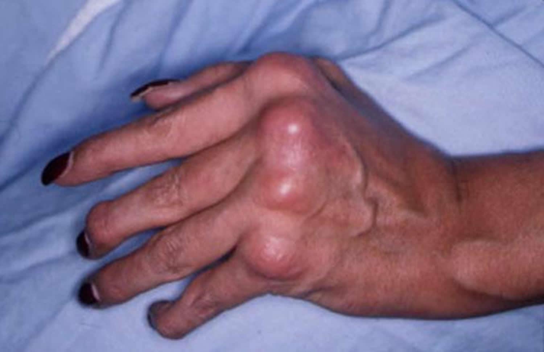 psoriatic arthritis hand