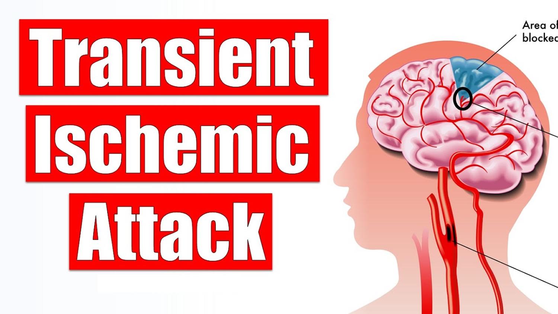 Transient Ischemic Attack (TIA) Symptoms Transient Ischemic Attack (TIA) Symptoms new foto