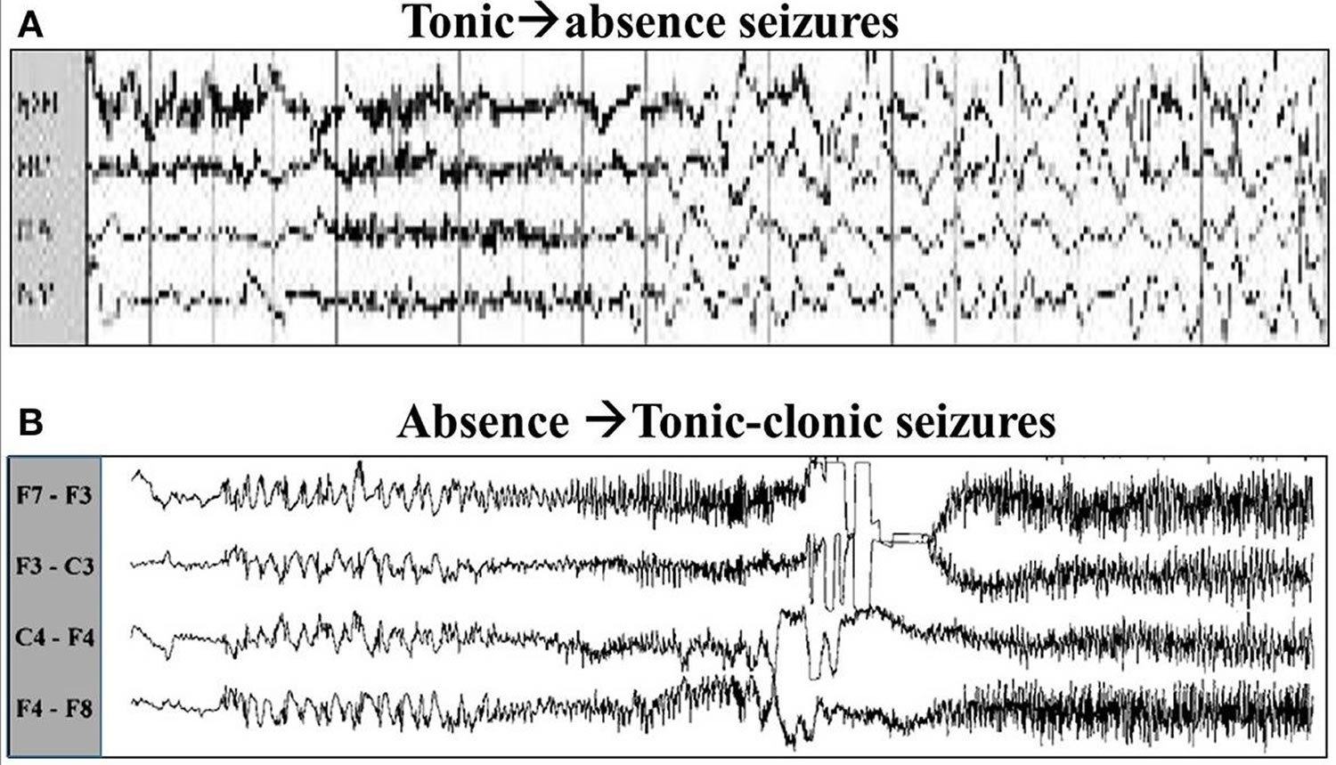 did you know this is how an eeg can look during a seizure