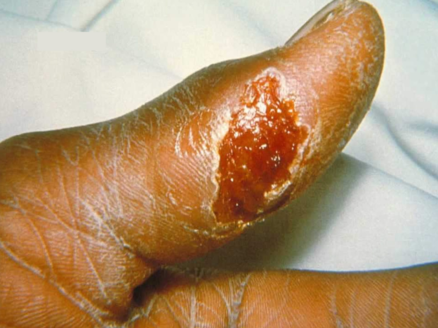An ulcer caused by Francisella tularensis
