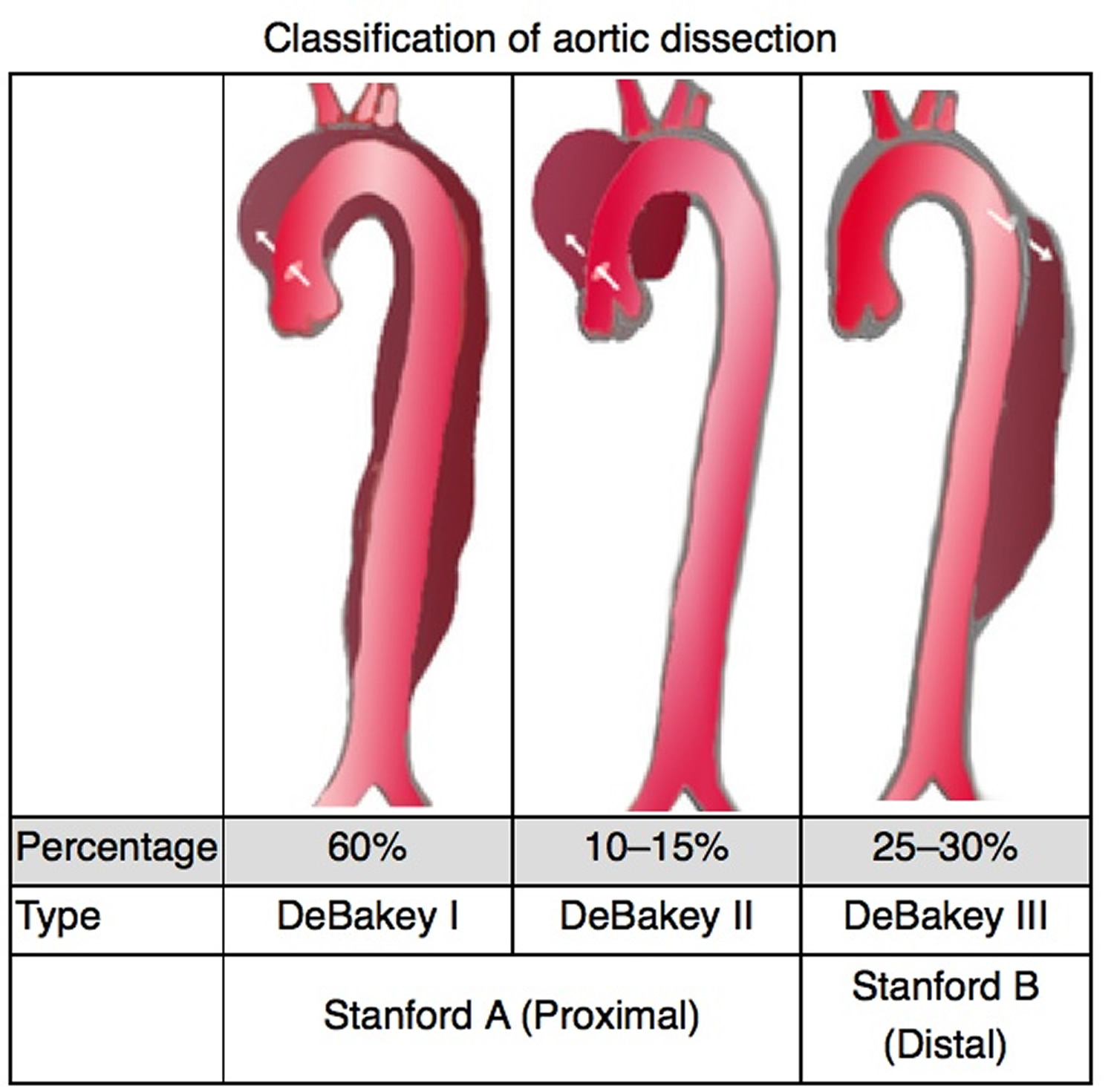 Aortic dissection type