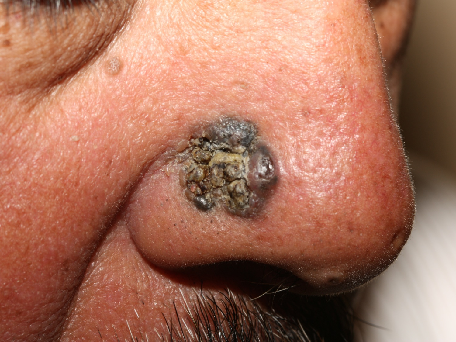 Basal cell carcinoma nose - pigmented