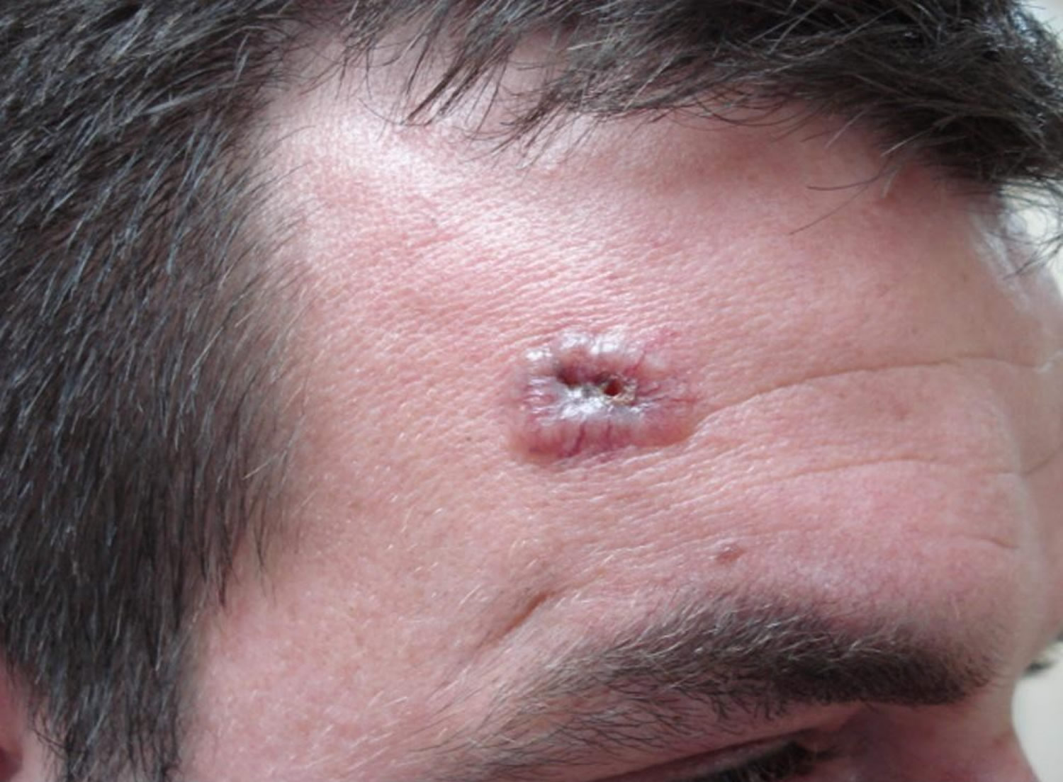Basal cell carcinoma on face