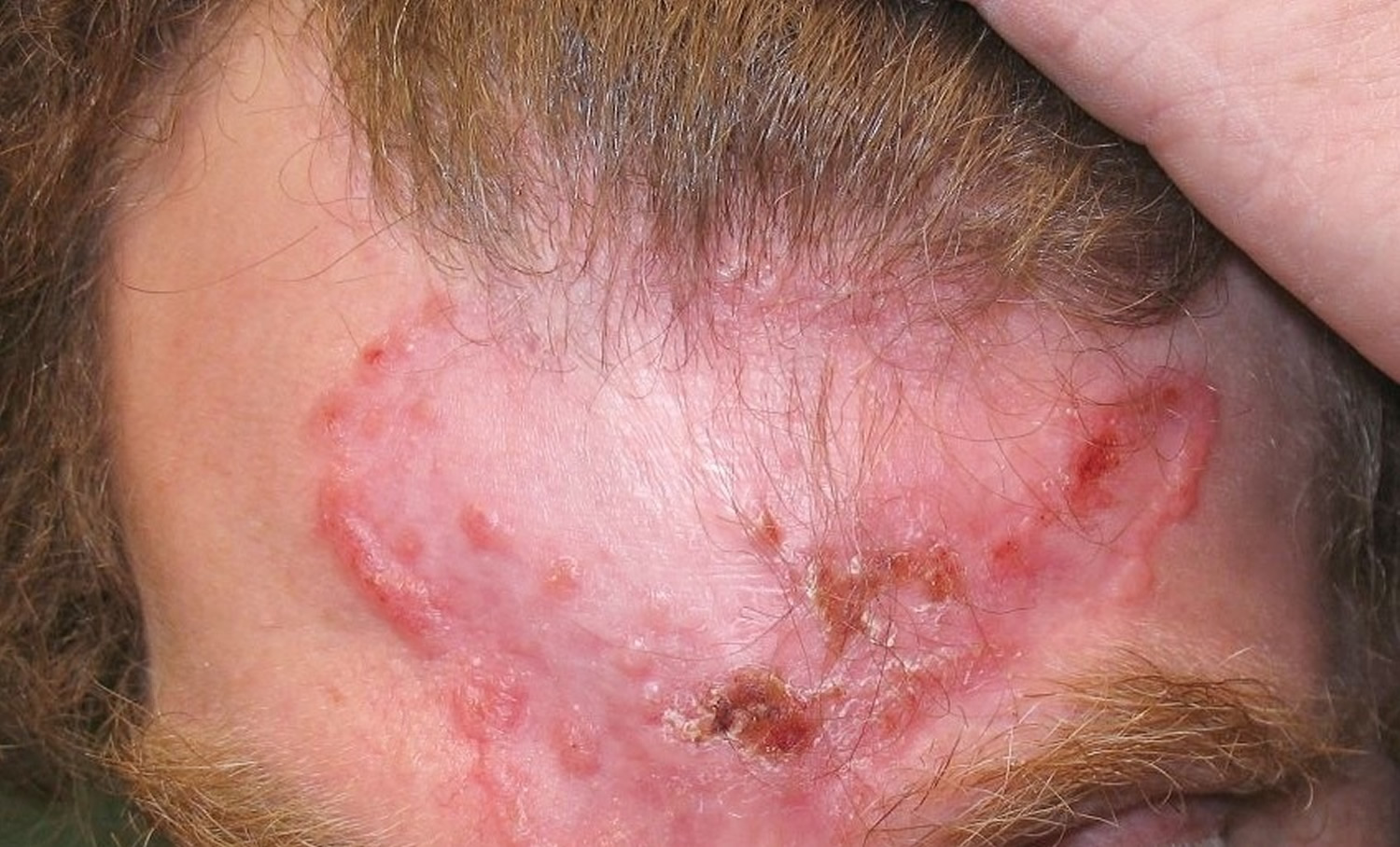 Basal cell carcinoma on scalp