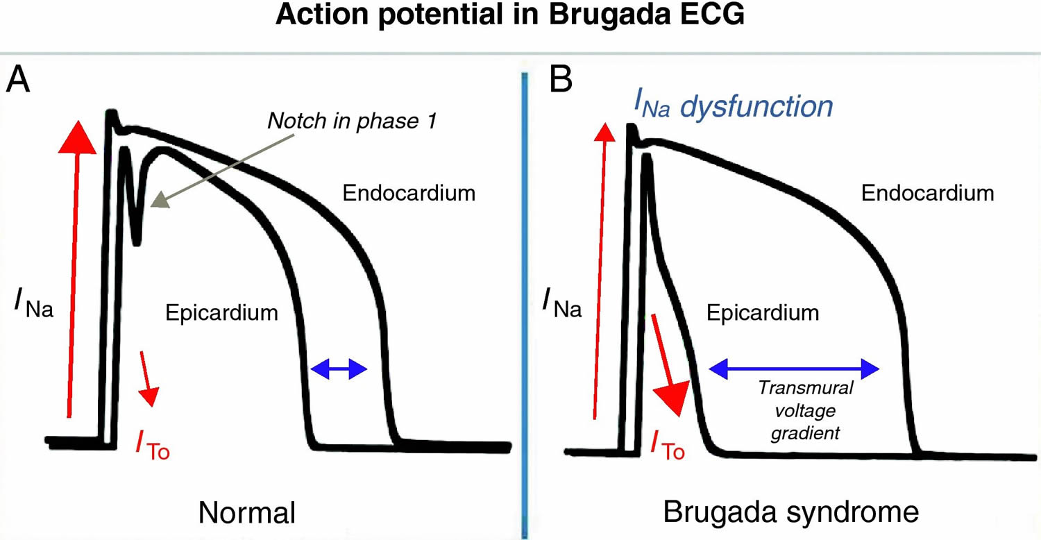 Brugada Syndrome Causes Ecg Symptoms Treatment Electrocardiogram Diagram Electrocar Diogram Action Potential