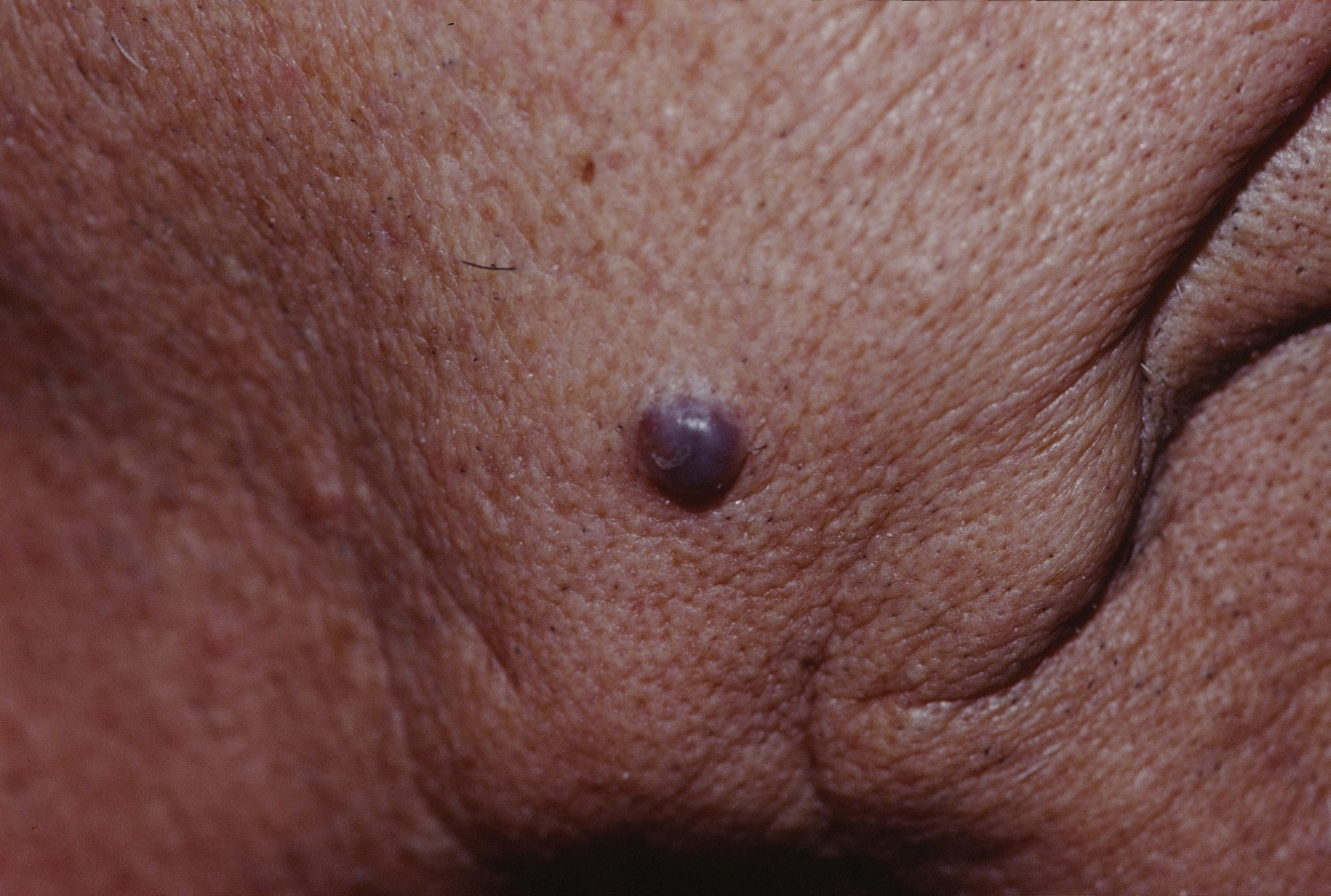 Cystic basal cell carcinoma