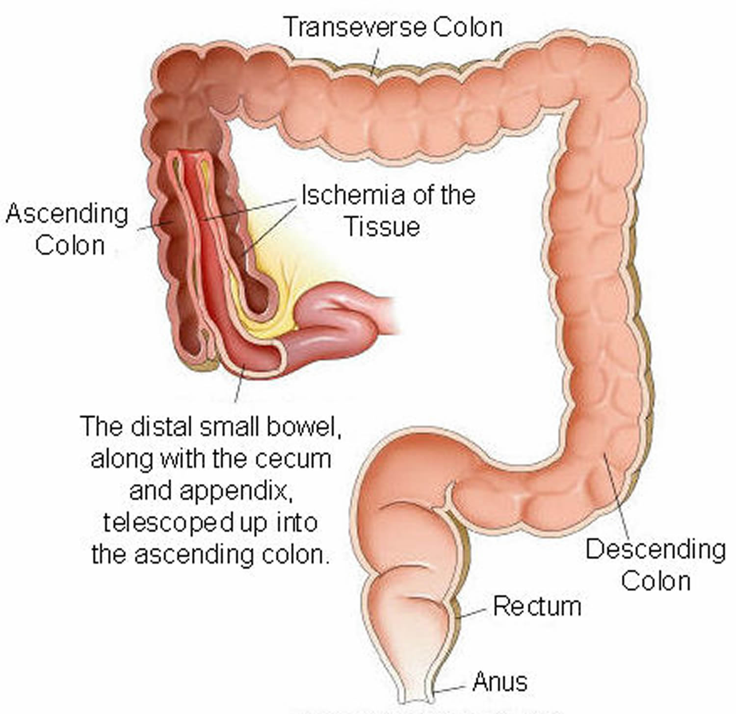 Bowel Obstruction Small Amp Large Causes Symptoms