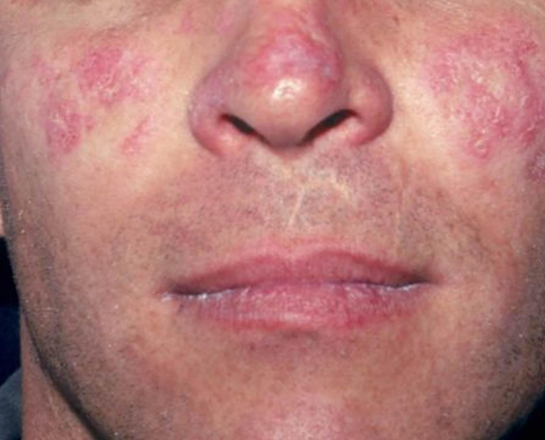Lupus rash