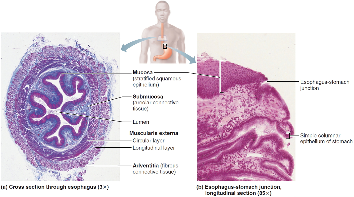 Esophageal Cancer Causes Signs Symptoms Treatment
