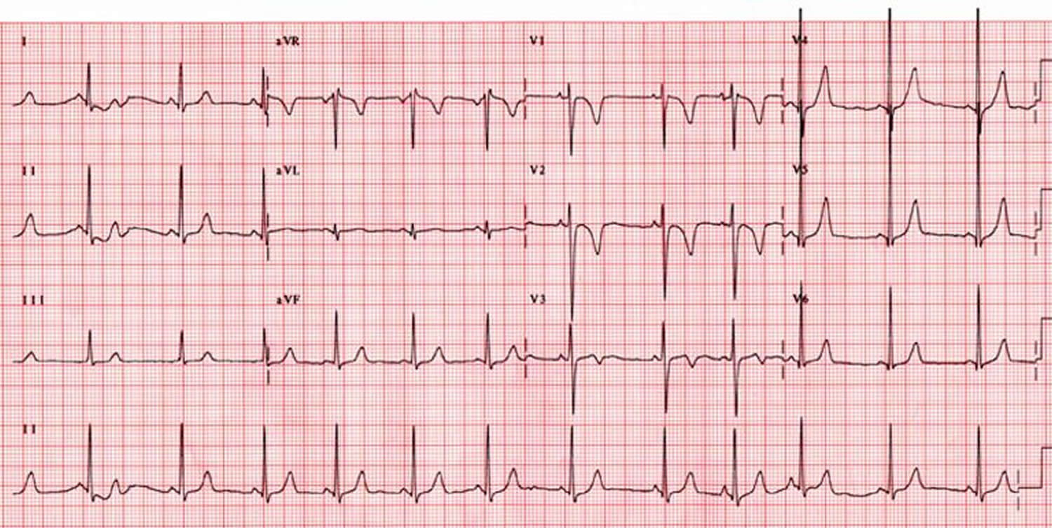 Sick sinus syndrome ECG - sinus arrhythmia