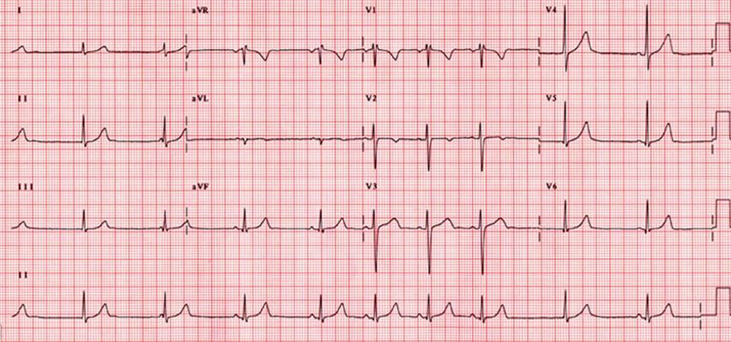 Sick sinus syndrome ECG - sinus bradycardia