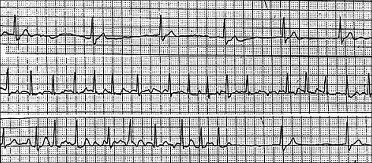 Sick sinus syndrome ECG