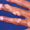 Wart on finger