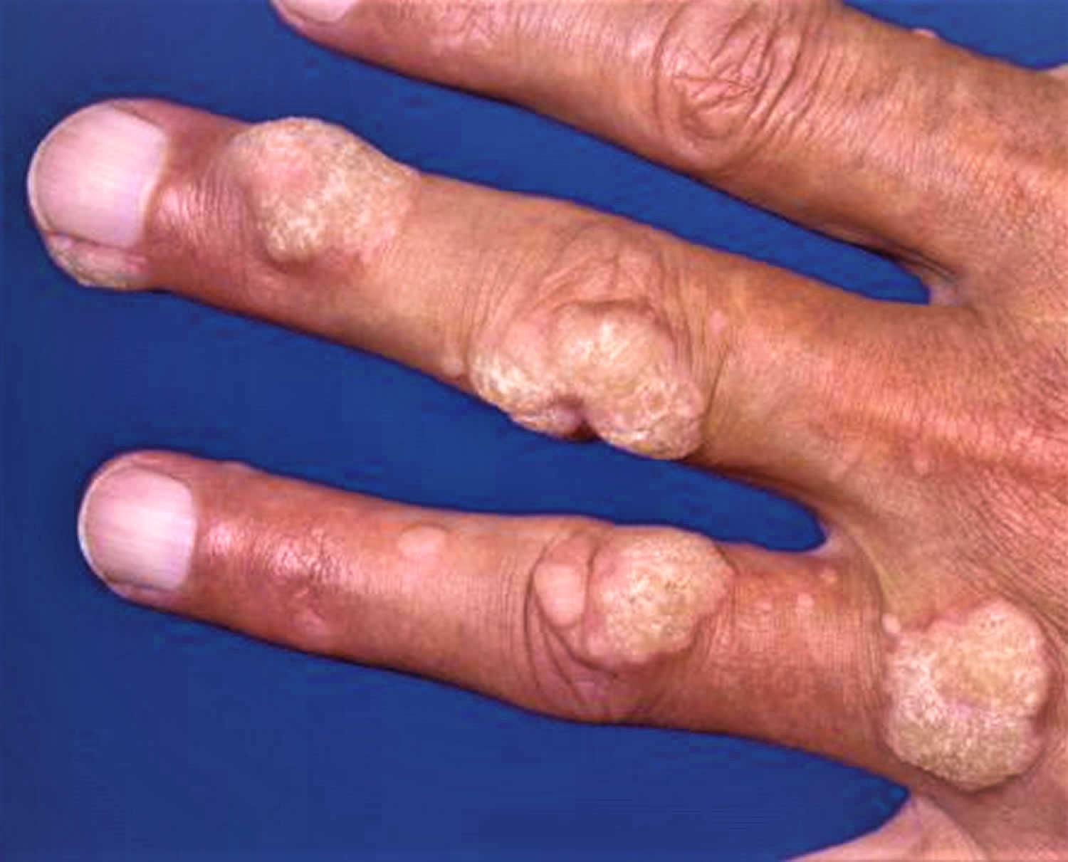 Pictures on warts of hands