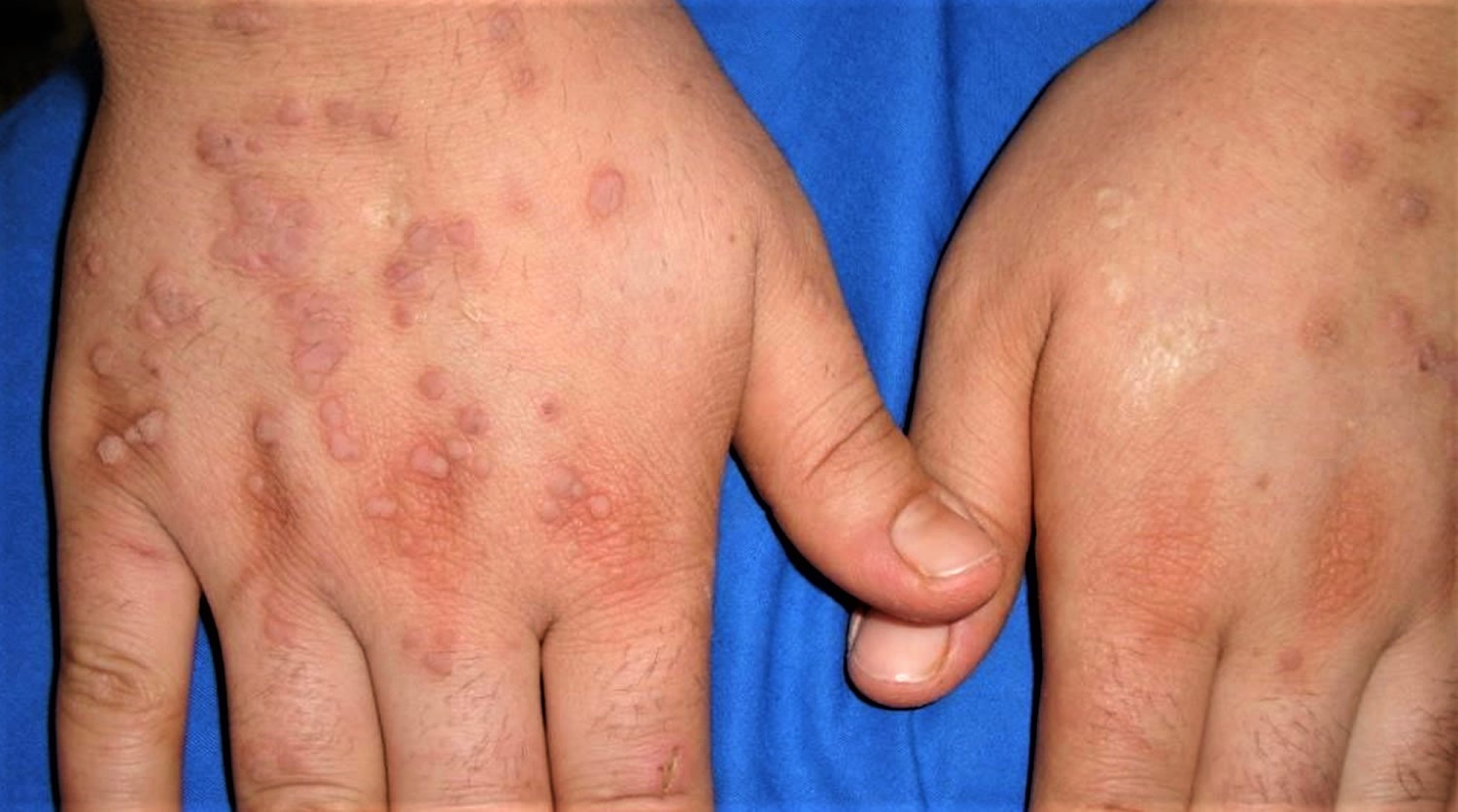 Warts Pictures Photos Images - What Do