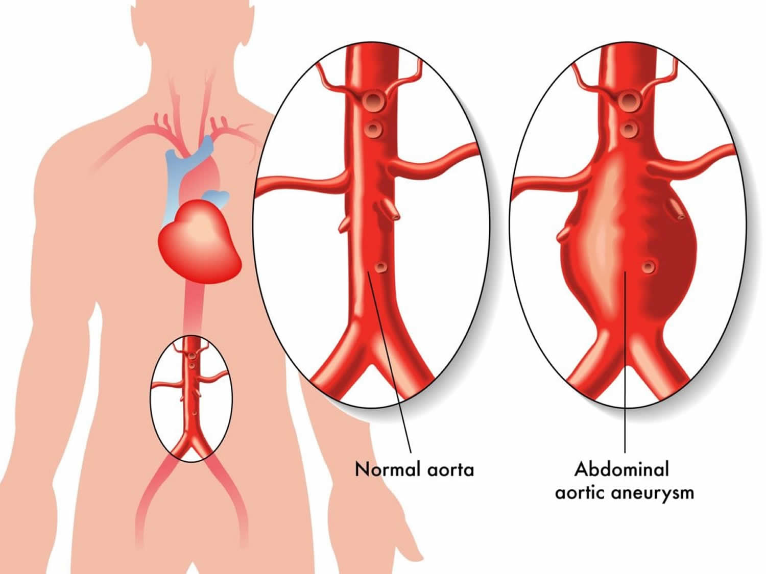 diagram of aaa aortic aneurysm abdominal amp thoracic causes symptoms a diagram of an atom of chromium #4