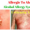 alcohol allergy