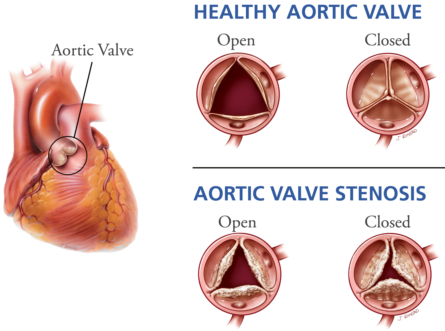 aortic valve stenosis - causes, symptoms, life expectancy, treatment
