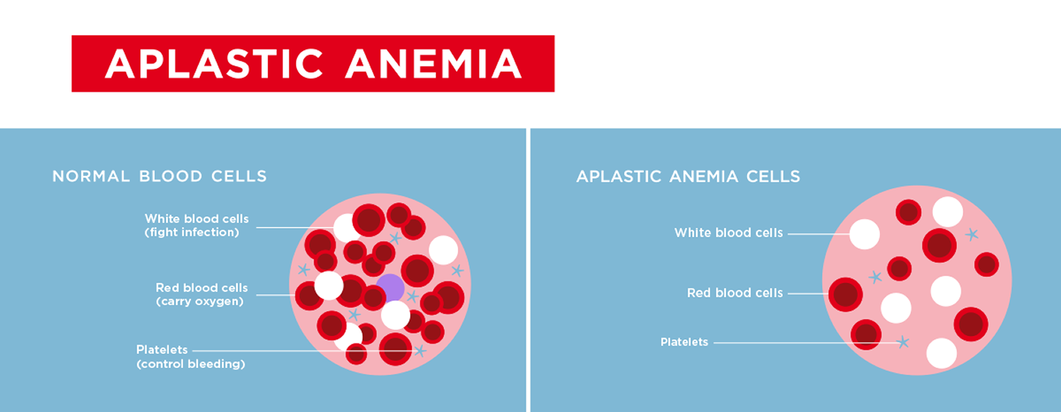 aplastic anemia a rare blood disorder Aplastic anemia develops when damage to stem cells in bone marrow results inadequate production of red blood cells, white blood cells and platelets get the essential facts about this blood disorder: its causes, symptoms history of a rare disorder called fanconi's anemia.