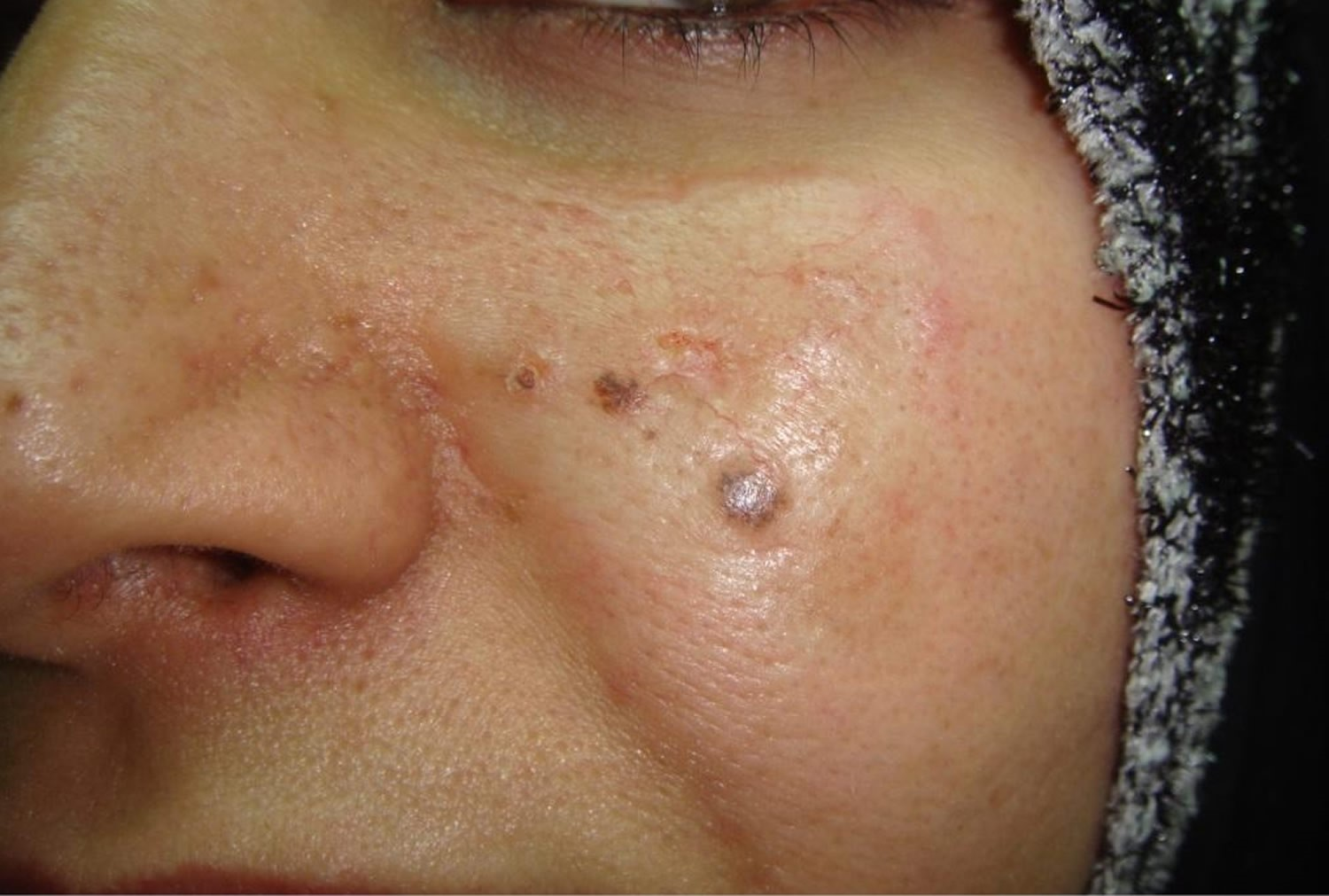 basal-cell-carcinoma-on-face