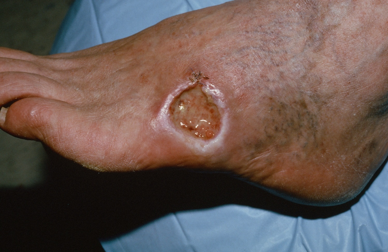 basal cell carcinoma on foot - untreated