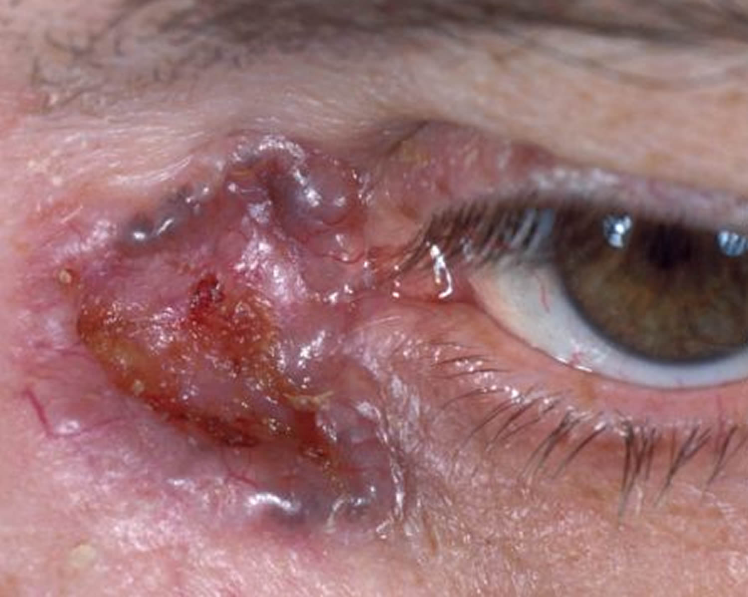 basal cell carcinoma - untreated