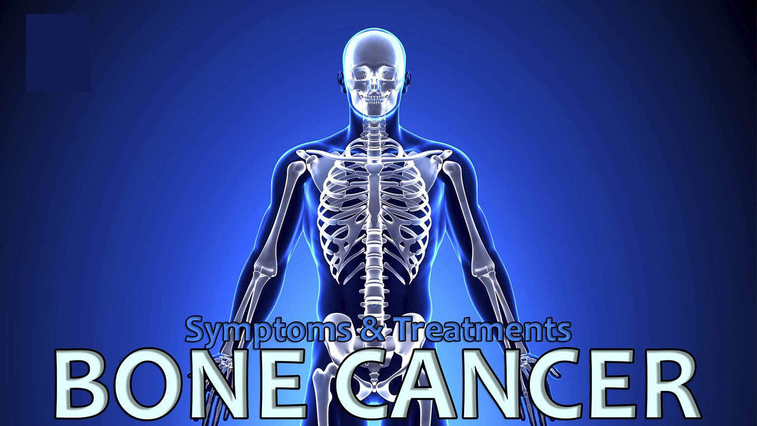 Bone Cancer Causes Types Signs Symptoms Treatment