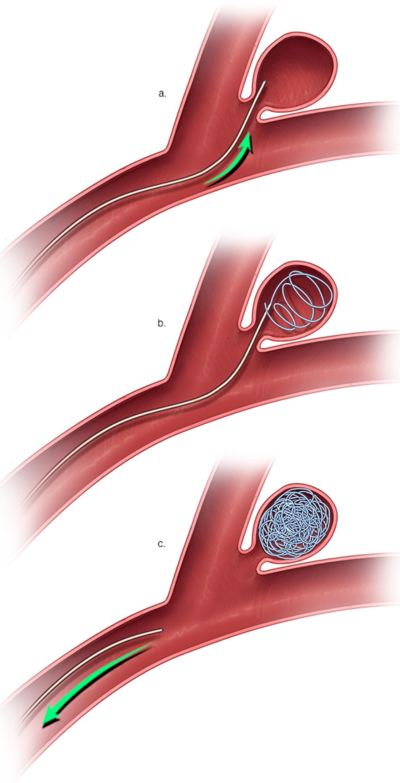brain aneurysm endovascular coiling