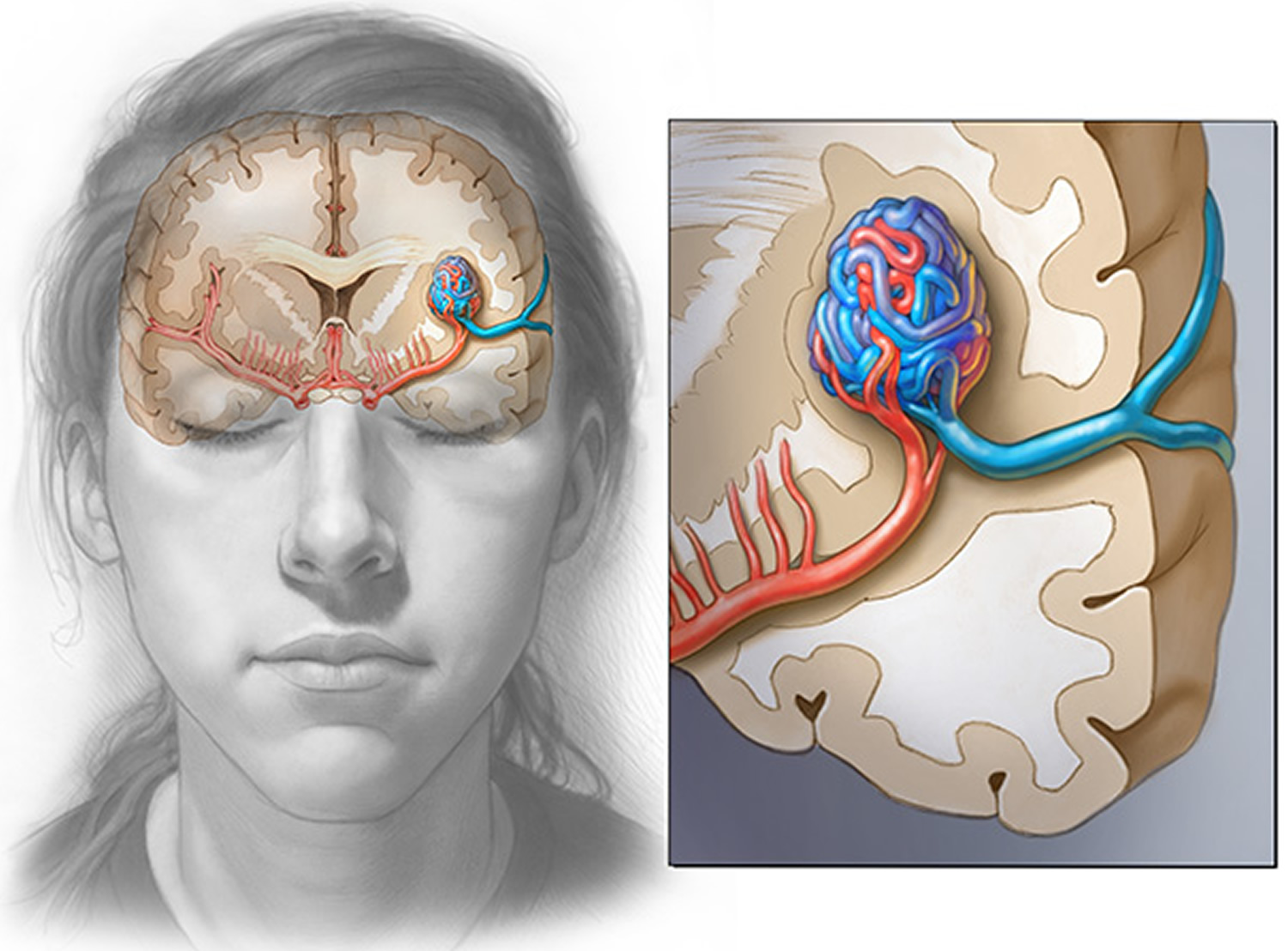 Arteriovenous Malformation - Brain Avm - Causes, Symptoms ...