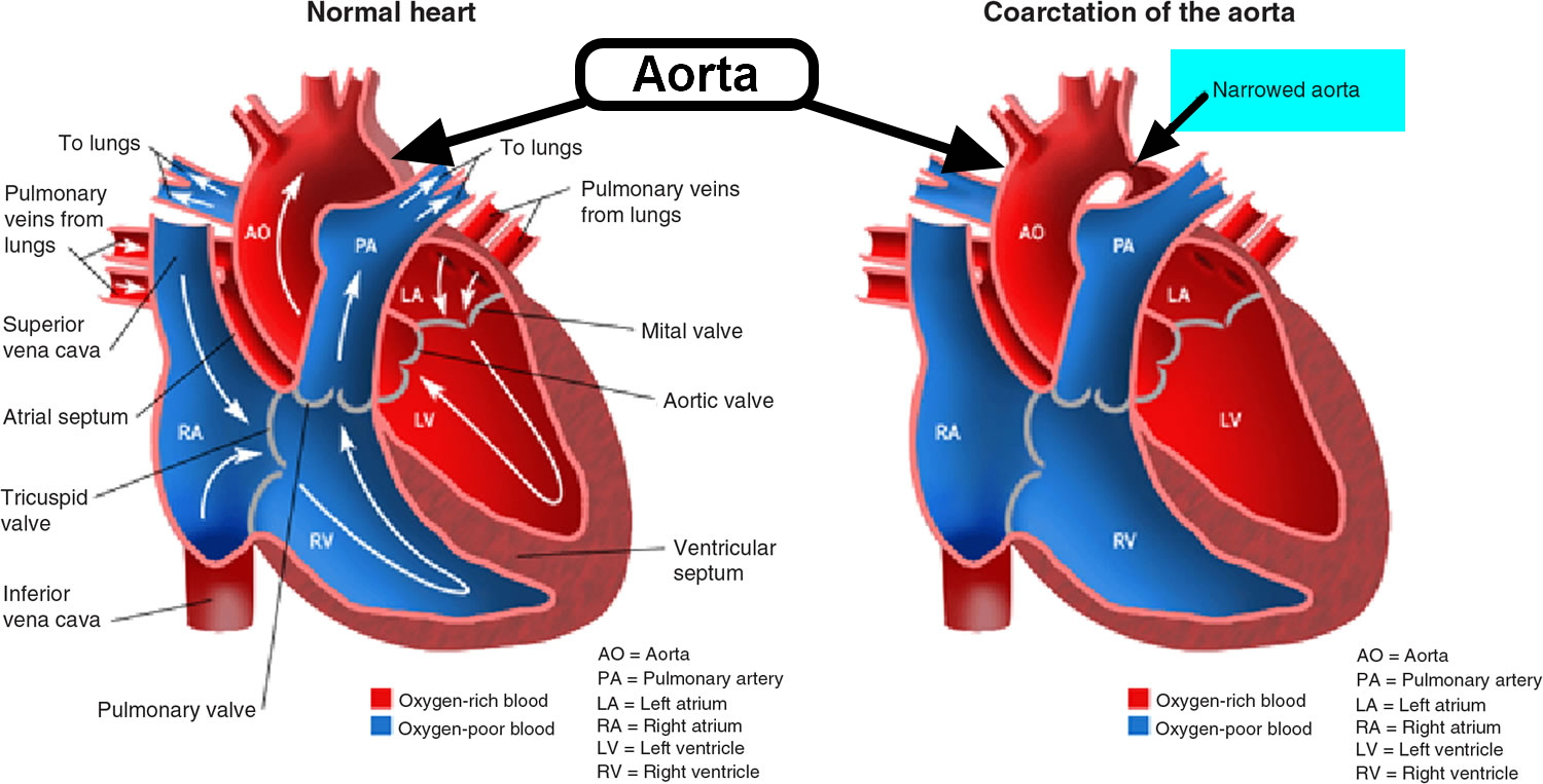 Coarctation of Aorta - In Infants - Symptoms, Murmur, Surgery