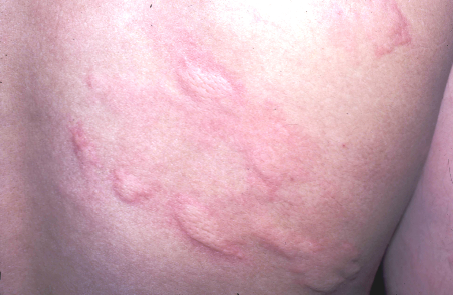 food allergy rash