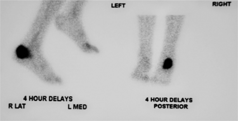 foot osteomyelitis - bone scan