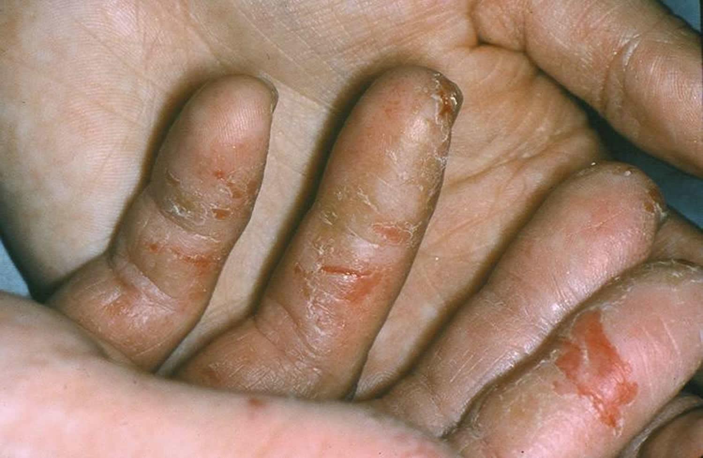 hand-eczema