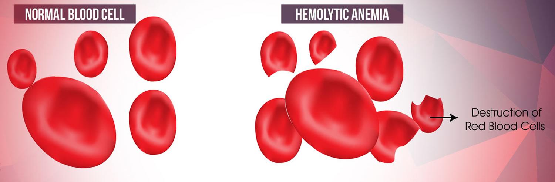 Hemolytic Anemia - Causes, Symptoms, Treatment